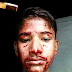 PATHETIC: Indian boy suffers mysterious condition that causes him to bleed from his ear, eyes, mouth and hairline up to 10 times daily
