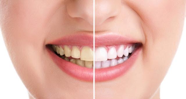 5 Cara Ampuh Memutihkan Gigi Secara Alami