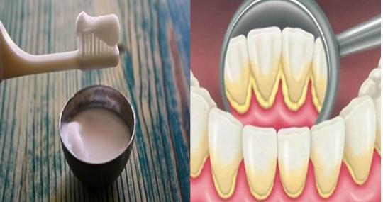 Eliminate Dental Plaque
