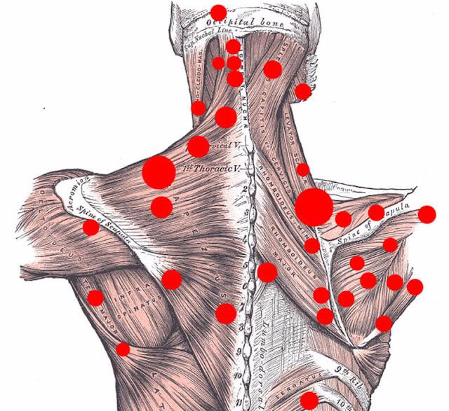 Image result for Карта триггеров: точки боли и точки напряжения мышц