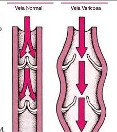 varizes veias com válvulas alteradas refluxo