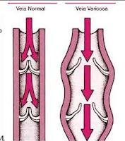Nas varizes, ocorre alterações nas válvulas das veias que não são capazes de manter o fluxo de sangue somente em direção ao coração