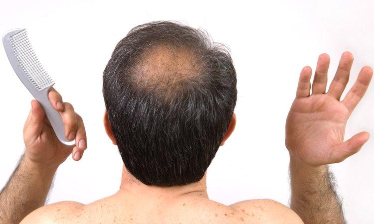 Los medios del enderezamiento químico de los cabello