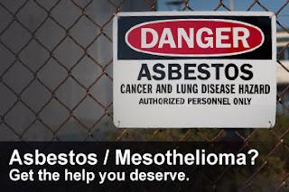 """Mesothelioma Asbestos Lawyer"""