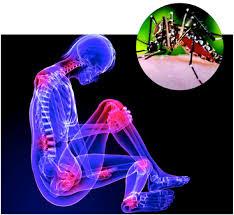 chikungunya treatment home remedies in urdu