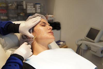 Foto Memancungkan Hidung Kencangkan Pipi Natasha Skin Care Tanam Benang