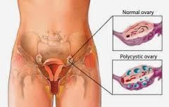 Obat Sipilis Luka Pada Vagina