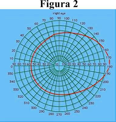 Figura 2: Diagrama de perímetro que muestra el campo visual normal