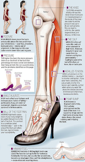 All The Damage They Are Doing to Our Feet Heels