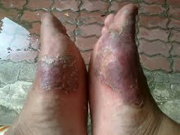 Eksim kering pada kaki yang sudah menahun