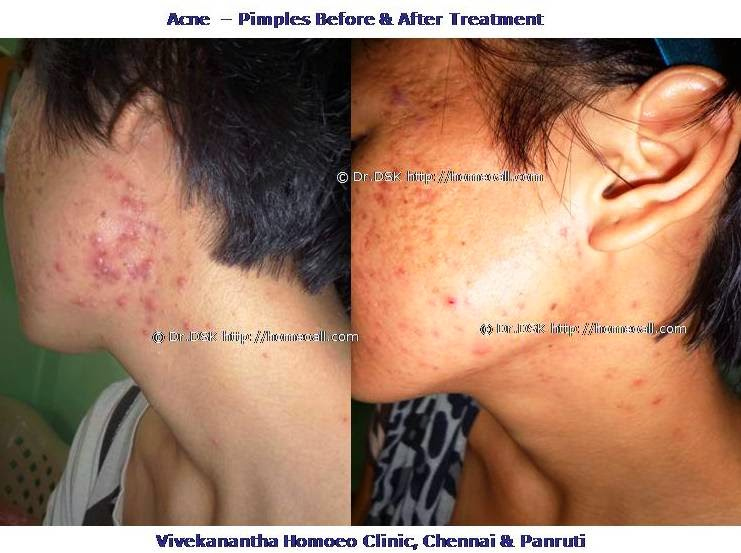 mugapparu, pimples, acne, best treatment in chennai, tamilnadu, india,best skin clinic in chennai,