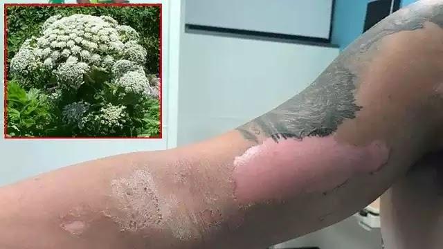Το  γιγαντιαίο ηράκλειο  - ένα είδους φυτού που καίει το δέρμα και προκαλεί τύφλωση! VIDEO