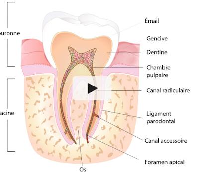 la reprise de traitement de racine (RTE) ou l'implant dental?