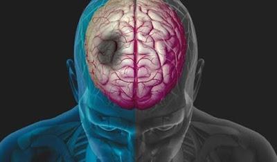 Όγκος στο κεφάλι: Τ συμπτώματα και οι κινήσεις που πρέπει να κάνεις – Μην πανικοβάλλεσαι μπορεί να μην είναι σοβαρό