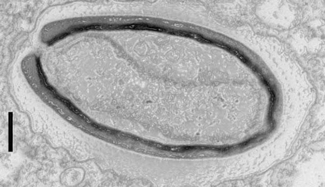 Virus yang telah ditemukan semenjak tahun PENELITI TEMUKAN 6 VIRUS BARU