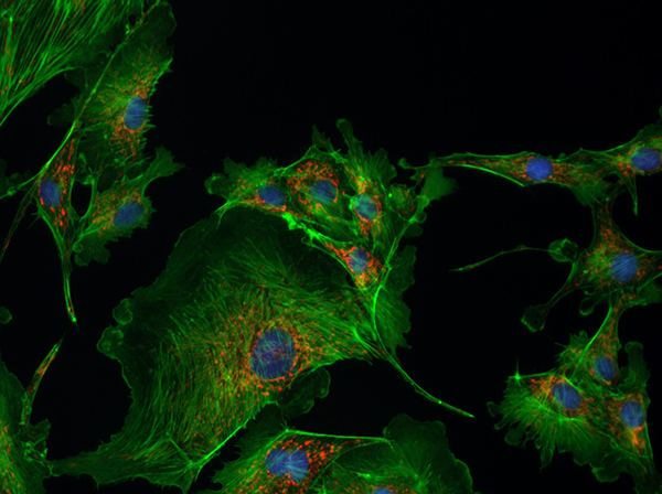 Microscopy image of BPAE captured using a 40x objective on a fluorescence microscope equipped with the Lumenera Infinity 3S-1UR camera.