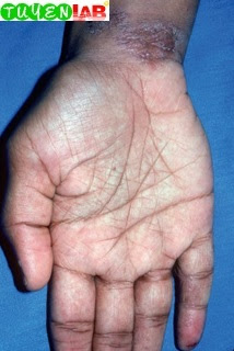 Fig. 5.22 Hyperlinear palms in a patient with active atopic dermatitis