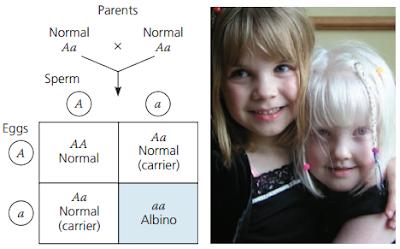 Penyakit Kelain Genetik, Kelain Genetik, Sifat Resesif, karakter sifat resesif, carrier penyakit, albino, Cystic Fibrosis, Sel sabit (Sickle-Cell Disease), kelainan hemoglobin, Deteksi Dini penyakit kelainan genetik, amniocentesis dan chorionic villus sampling (CVS), deteksi penyakit janin