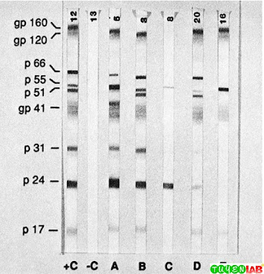 Human immunodeficiency immunoblot