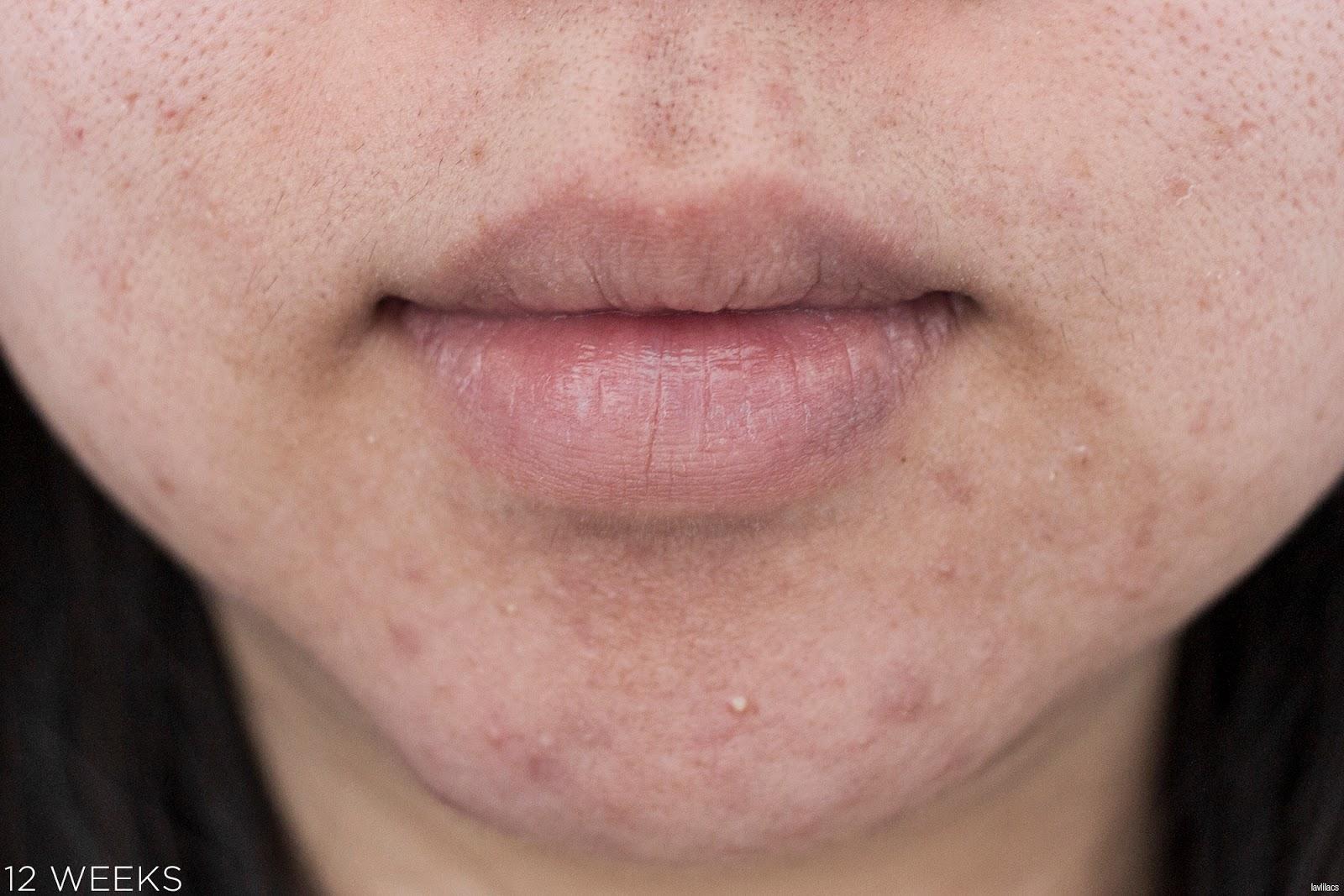 tria Hair Removal Laser Facial Hair 12 Weeks Closeup