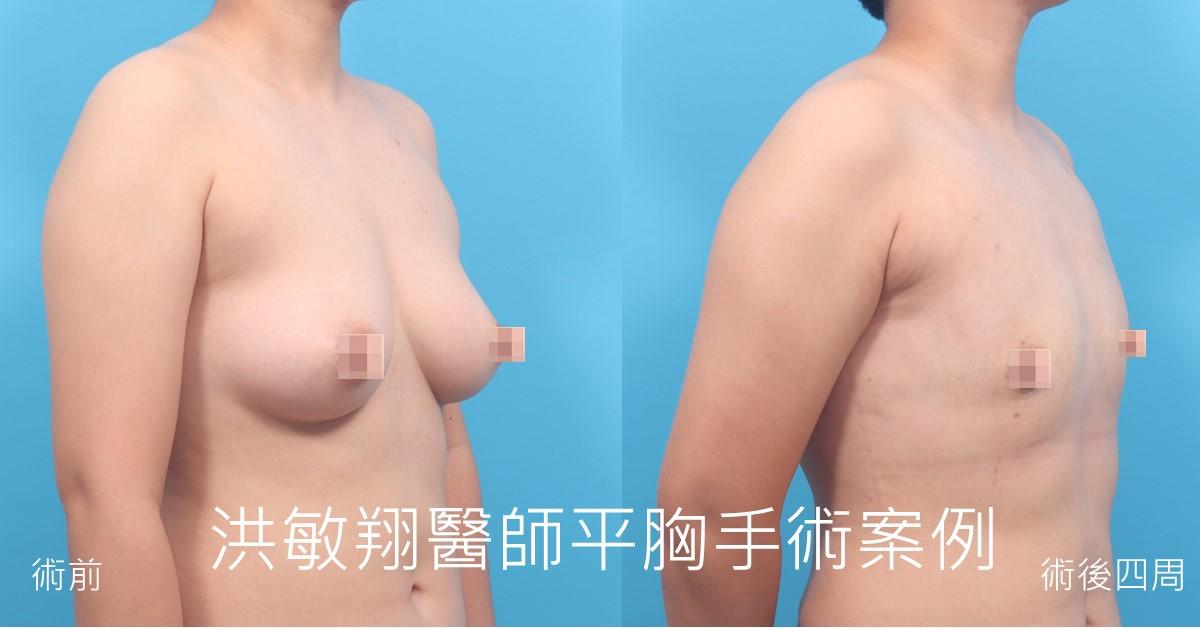 台南平胸手術