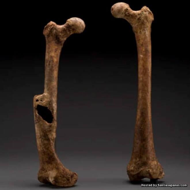 Kenapa Tulang Patah Perlu Diletakkan Besi?