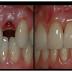 Dile Adiós a Los Implantes Dentales. Cómo hacer crecer un diente en 2 meses