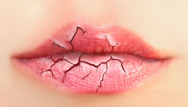Penyebab Bibir Pecah-Pecah dan Kering
