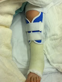 knee immobilizer and cast