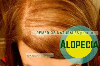 Remedios caseros para la alopecia o calvicie