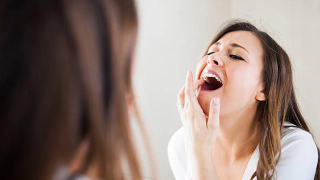 3 Cara Menghilangkan Sakit Gigi Dengan Cepat