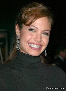 Анджелина Джоли в брекетах