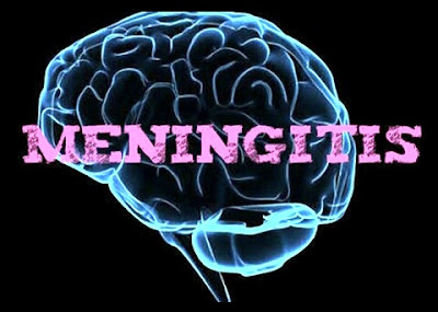 All about meningitis symptoms, causes and treatment