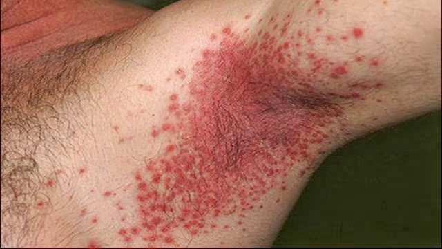 Candida Fungus Infection Natural Remedies Medicinal