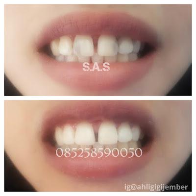 Foto contoh hasil penambalan perbaikan gigi depan keropos hitam berlubang