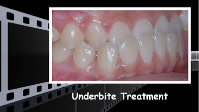 Underbite treatment, no jaw surgery, non extraction, class III, Orthodontics, orthodontists, Clear, Invisible, Braces, Invisalign, underbite,class III, face mask, non-surgery, non-extraction, crossbite, overbite, class II, crooked, spaced, crowding, teeth, severe, jaw alignment, cosmetics, implants, children, dentists, dentistry, friendly, adults, children, family, Lawrenceville, Norcross, Buford, Hamilton Mill, Dacula, Auburn, Sugar Hill, Sugar Loaf, Doraville, Chamblee, Stone Mountain, Decatur, Collins Hill, Snellville, Suwanee, Grayson, Lilburn, Duluth, Cumming, Alpharetta, Marietta, Dekalb, Gwinnett, County, Atlanta, North Georgia, GA, Georgia, 30043, 30093, affordable, Vietnamese, Spanish, weekend, Saturday, appointments, Dr. Quang Nguyen, Georgia Orthodontic Care, Nguyen Orthodontics.