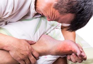 Vận động thường xuyên, tập thể dục thể thao là cách để bệnh gout không tái phát