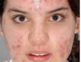 Acne Cure, Acne, Severe Acne, Severe acne medication