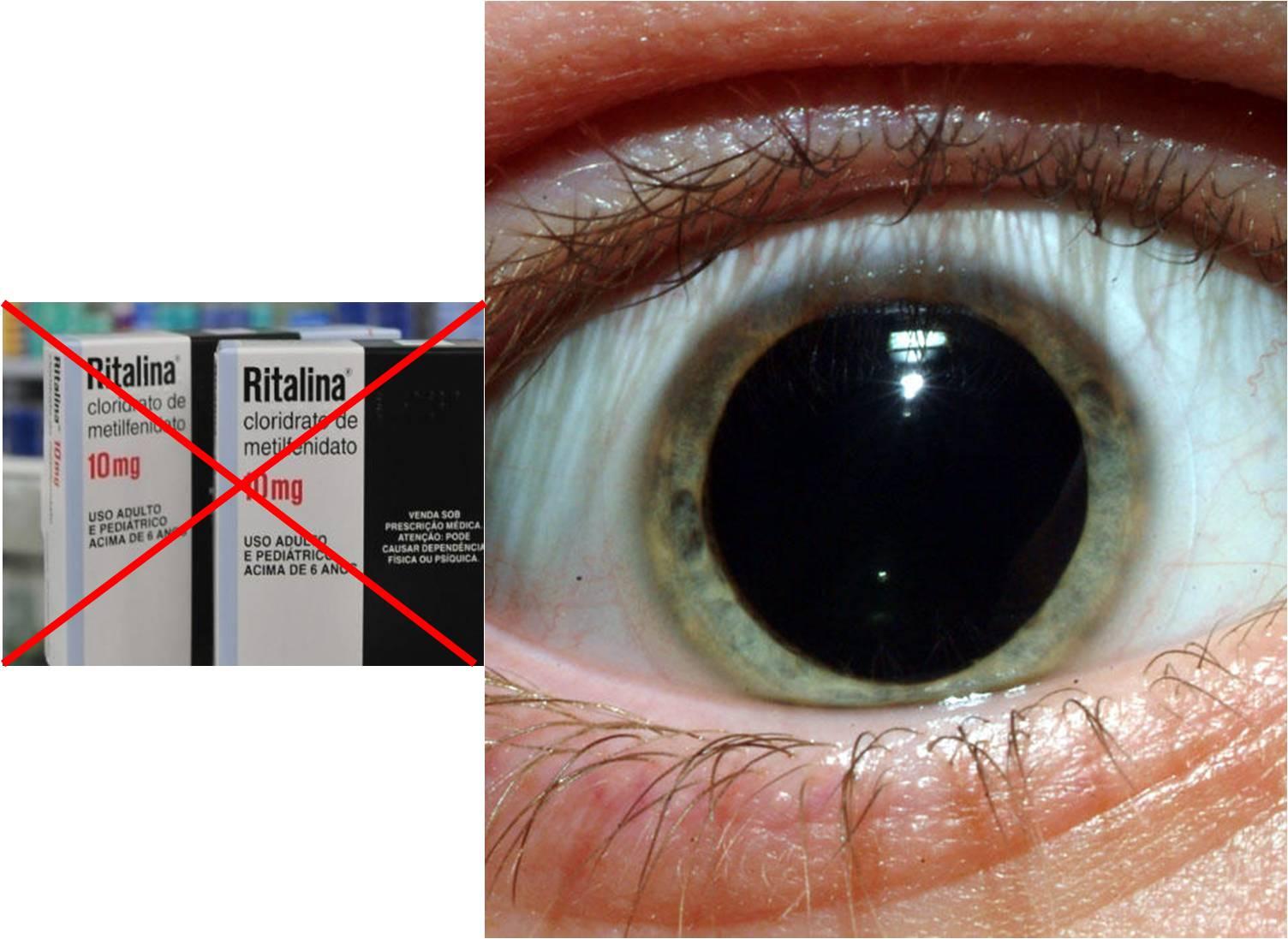 Ano Dilatado compromisso consciente: tdah e ritalina - pupilas dilatadas