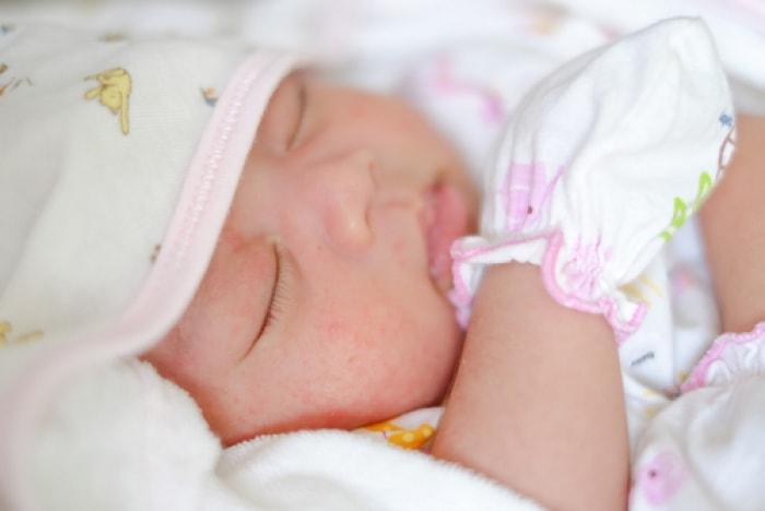 cách trị rôm sảy, cách trị rom say o tre em, cách trị rôm sảy trẻ em, cách trị rôm sảy hiệu quả cho bé, cách trị rôm sảy tại nhà, cách trị rôm sảy mùa nóng, cách trị rôm sảy hiệu quả, cách trị rôm sảy hiệu quả nhất, cách điều trị rôm sảy ở trẻ sơ sinh, cách chữa trị rôm sảy hiệu quả,