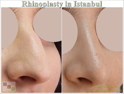 Rhinoplasty in istanbul - Rhinoplasty in Turkey - Nose job in istanbul - Rhinoplasty istanbul - Rhinoplasty Turkey -  Nasal aesthetic surgery in İstanbul - Nose aesthetic surgery in Turkey Nose job İstanbul - Nose job Turkey - Nose reshaping in İstanbul - Nose correction surgery in İstanbul - Experienced rhinoplasty doctors in Istanbul - Cheap rhinoplasty in istanbul - Nose cosmetic surgery in Turkey