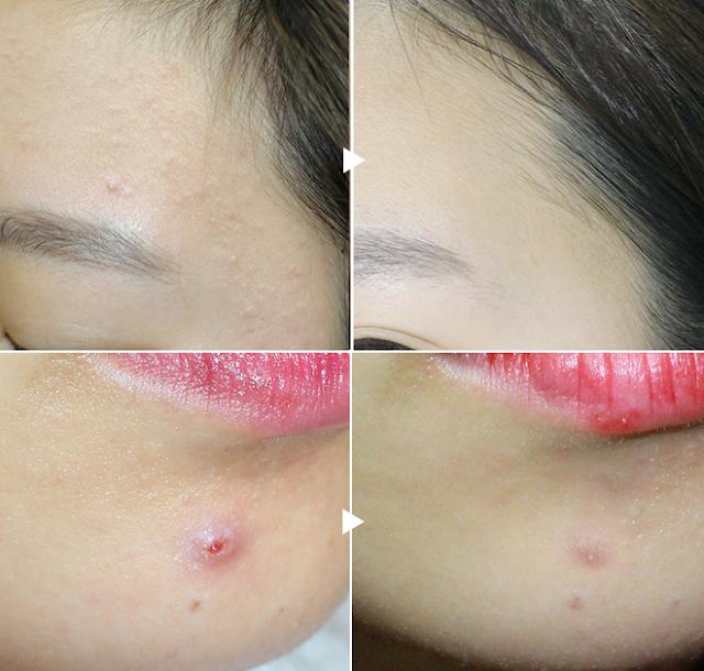 review kem trị mụn pair acne nhánh chóng giá rẻ