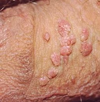 genital warts images
