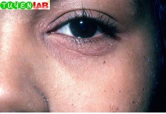 Fig. 5.18 Atopic dermatitis with Dennie-Morgan lines