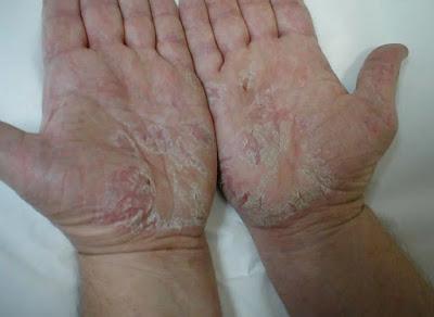 Dermatitis Kronis Pada Tangan