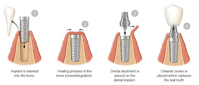 dental-implants-process