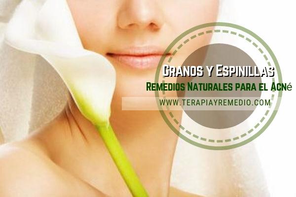 Remedios naturales para el acné, granos y espinillas producidos por los bruscos cambios hormonales