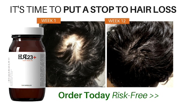 hair loss treatment HR23+