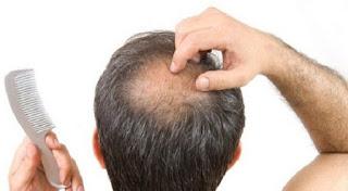 rambut otak tengah