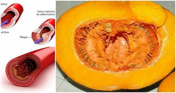 холестерин лпнп в крови